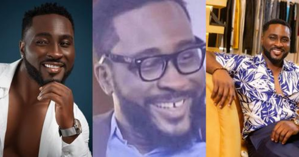 Big Brother Pere Teeth Revealed
